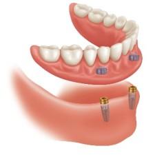Regarnissage et rebasage à Montreal - Bruno Del Papa (denturologiste à Montréal)